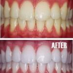 По - бели зъби вкъщи